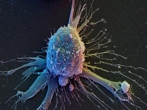Kök hücre nakli 13 yılda 10 kat arttı