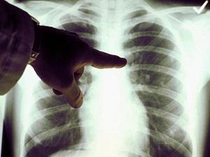 En zoru akciğer kanseri!