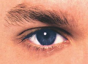 Görme bozuklukları MS hastalığının habercisi olabilir