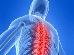 Omurgadaki eğrilik akciğer yetmezliğine neden olabiliyor