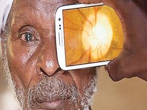 Esafed Mali'de 10 bin katarakt ameliyatı yapacak