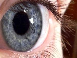 Göz hastalığı, göz rengini değiştiriyor