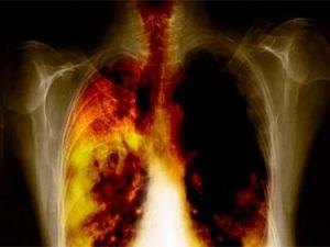 KOAH hastalığının en büyük sebebi sigara