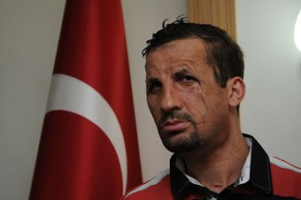 Türkiye yüz nakillerinde dünya liderliğine oynuyor