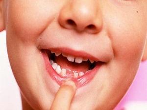 Erken kaybedilen sütdişi ağız yapısını bozuyor