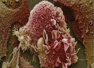 Kanser, dünya genelinde artıyor!