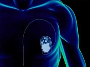 Kalp pili taşıyanlar manyetik alanlardan uzak dursun!