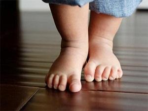 Düztabanlık, çocuklarda kireçlenmelere neden olabilir