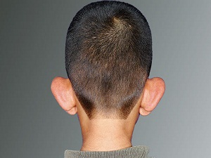 Kepçe kulak ameliyatı nasıl yapılıyor?
