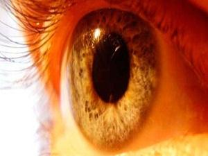 Sarı nokta körlük nedeni