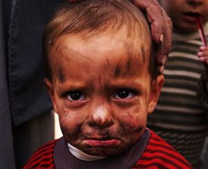 5.5 milyon Suriyeli çocuk savaş mağduru