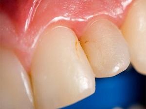 Diş kayıplarının en büyük nedeni diş eti iltihapları