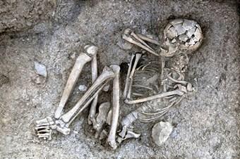 Kanser 3200 yıl önce de vardı