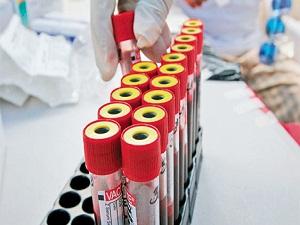 Yanlış alınan kan testleri hastayı ölüme götürüyor
