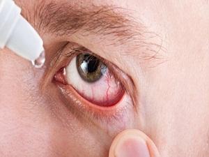 Kuru göz tedavisinde omega-3 kullanımı destekleyici rol oynar
