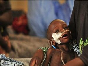 Yeryüzü Doktorları: Bebekler açlığa dayanamaz
