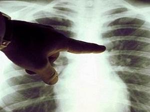 Akciğer kanserinde tedavi başarısı 3 kat artıyor