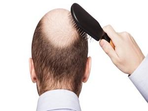 Sağlıklı saçın yolu mideden geçiyor