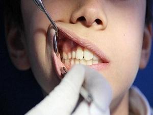 Diş kaybına yol açan 5 neden