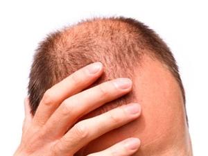 Saç dökülmesine kanlı çözüm!