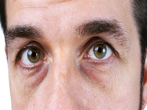 Göz altı morlukları için maske