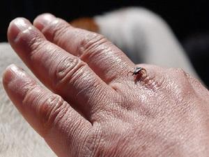 Böcek ısırıklarında hemen bunu yapın