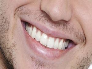 Dişinizi beyazlatmak için bu yöntemleri kullanın