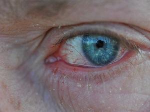 Kuru göz hastalığında ciddi artış kaydedildi