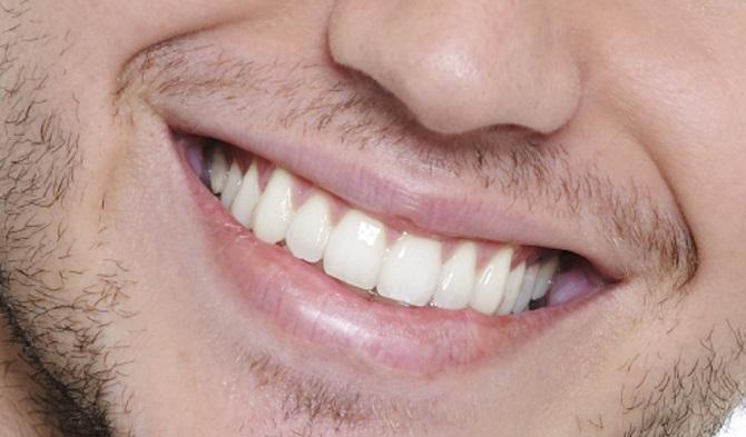 Sağlıksız dişler böbrekleri vuruyor