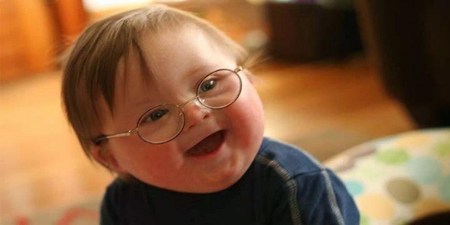 Bebeğin otizmli olma riskini arttırıyor
