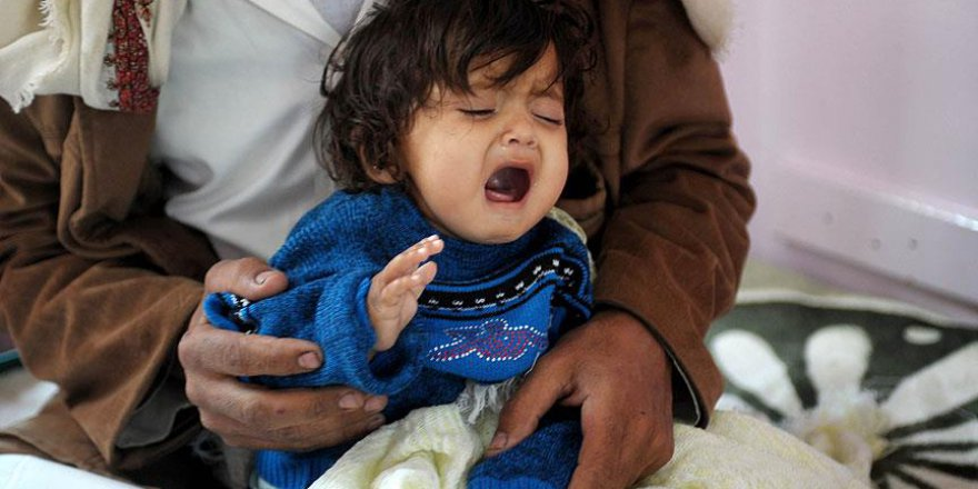 Yemen'de 'savaş kurbanı' çocuklar