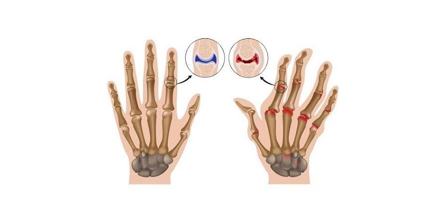 Romatoid artrit hastaların yaşamını zorlaştırabiliyor