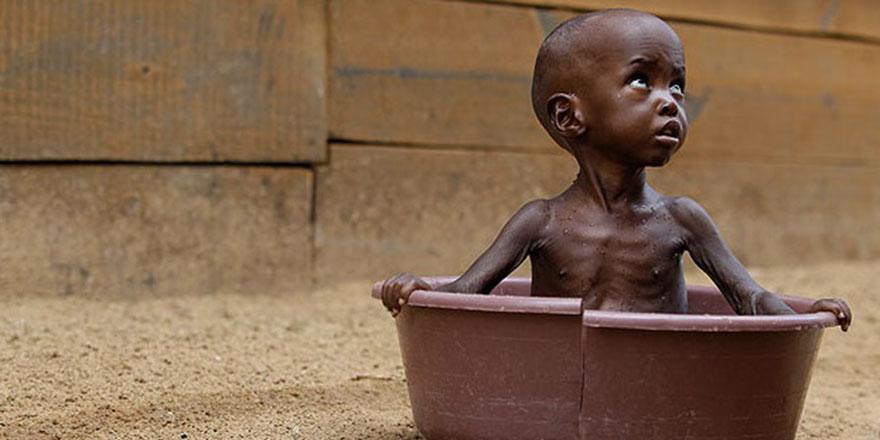 Somali'de çocuk nüfusunun yüzde 92'si yetersiz besleniyor