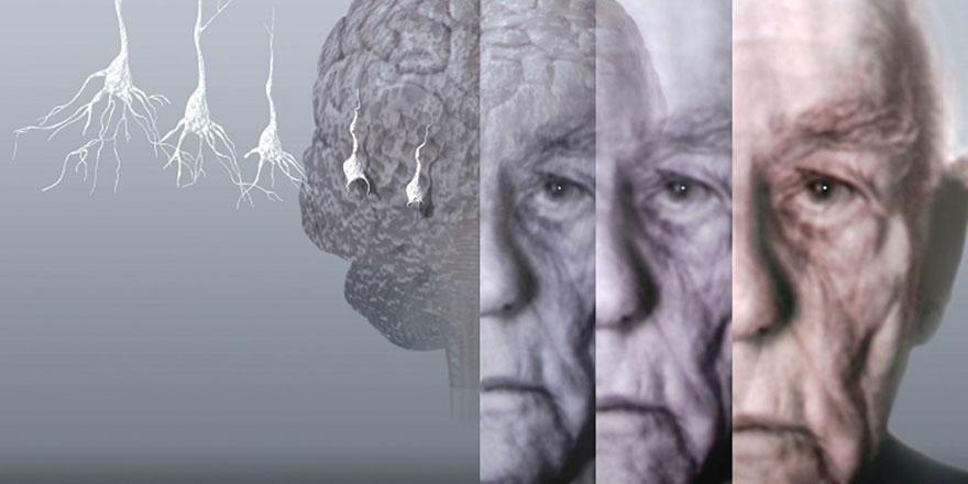 Büyük iddia: Alzheimer'ın nedeni bulundu iyileşme olacak