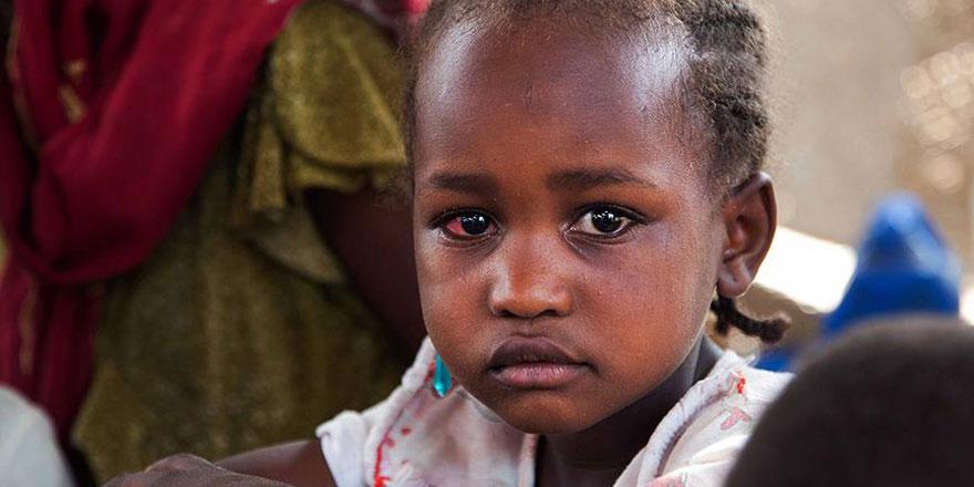 Sudan açlık kriziyle karşı karşıya