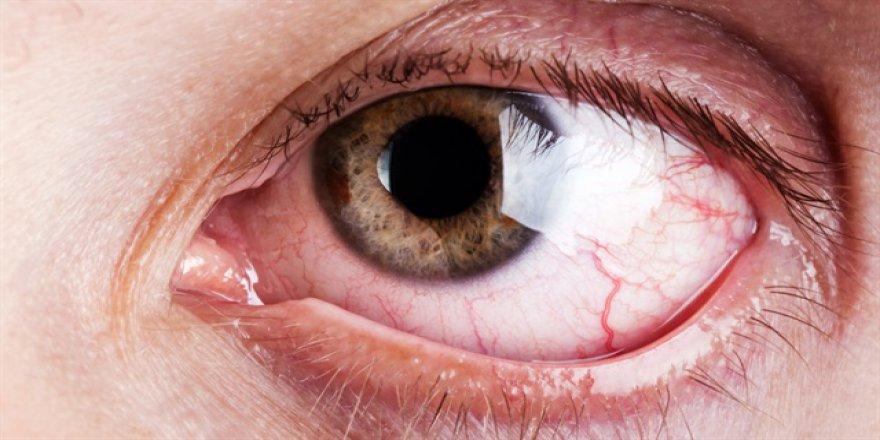 Yaz ayında göz enfeksiyonuna dikkat