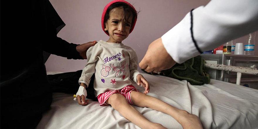 Müslümanlar birbirini öldürdüğü için Yemen'de çocuklar aç kalıyor