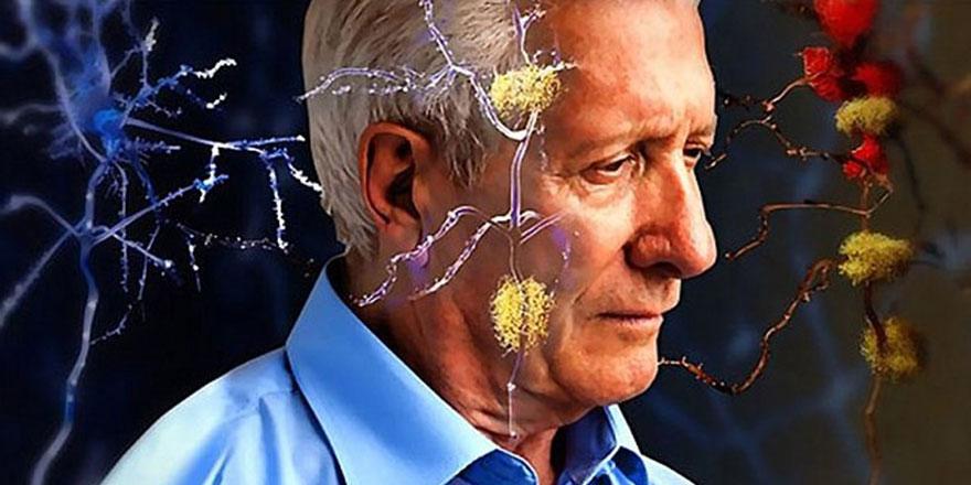Alzheimer hastalarına hatırlatma terapisi yapılıyor