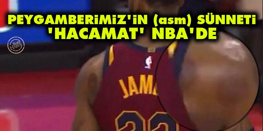 Peygamberimiz'in (asm) sünneti 'hacamat' NBA'de
