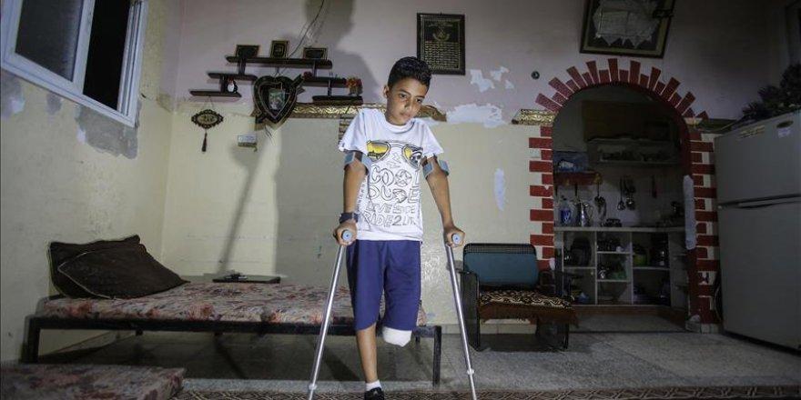 'Bacağımı kaybedecek hangi suçu işledim?'