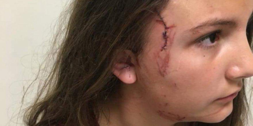 Yine Pitbull dehşeti: Parkta oynayan çocuğa saldırdı