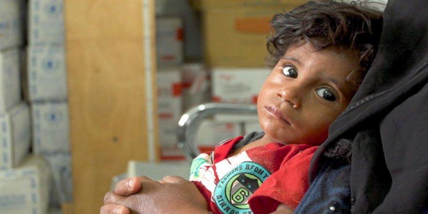 Yeterli beslenemeyen Yemenli çocuklar tedavi altında