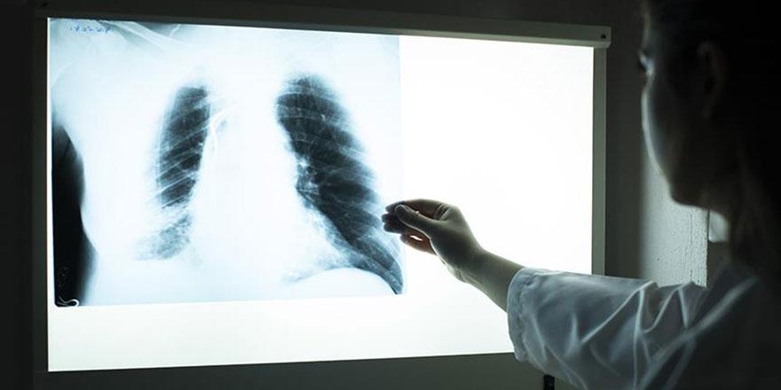 Bundan sonra doktora giden hasta yanında film taşımayacak