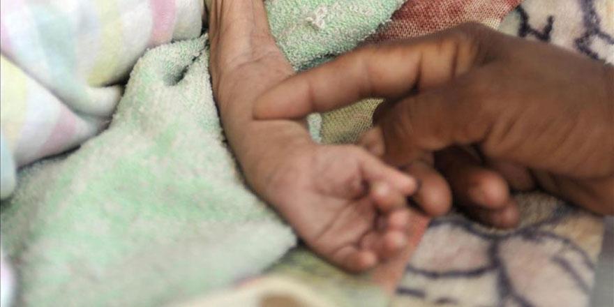 Yemen'de 85 bin çocuk açlıktan öldü