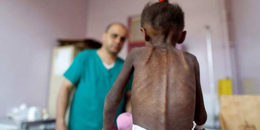 Yemen'de 14 milyon kişi ileri derecede açlığın eşiğinde