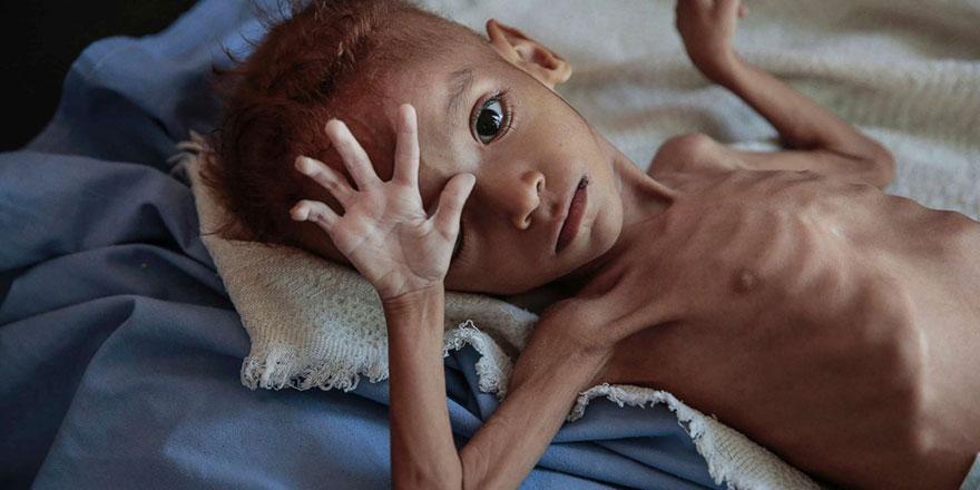 Acı tablo: Yemen'de 20 milyon kişi aç
