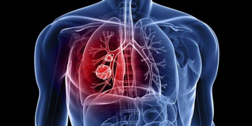 İlginç ölüm: Öksürünce akciğeri fırladı