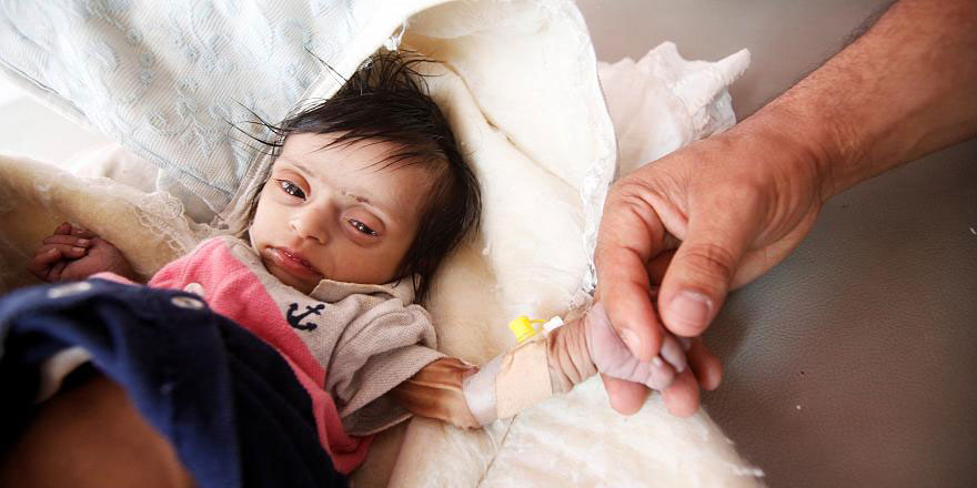 Yemen'de her 10 dakikada bir çocuk, önlenebilir sebeplerden dolayı ölüyor