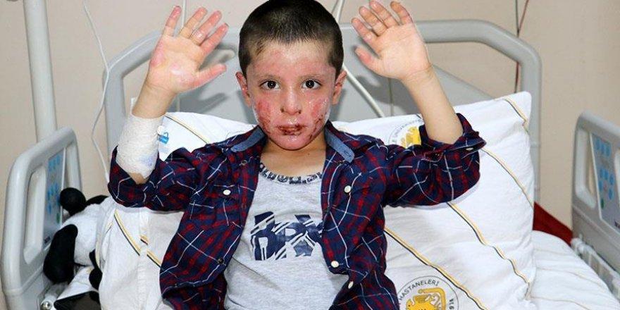 Vücudu yanan Erbilli çocuk, Türkiye'de şifa buldu