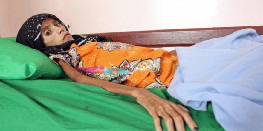 Yemen'de 12 yaşında 10 kilo kalan kızın dramı
